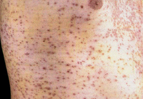 Herpes Zoster associated with the immunodeficiency: disseminated skin lesion.